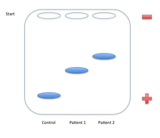 USMLE Step 1 Electrophoresis