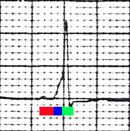 USMLE Step 1 Wolff Parkinson White EKG